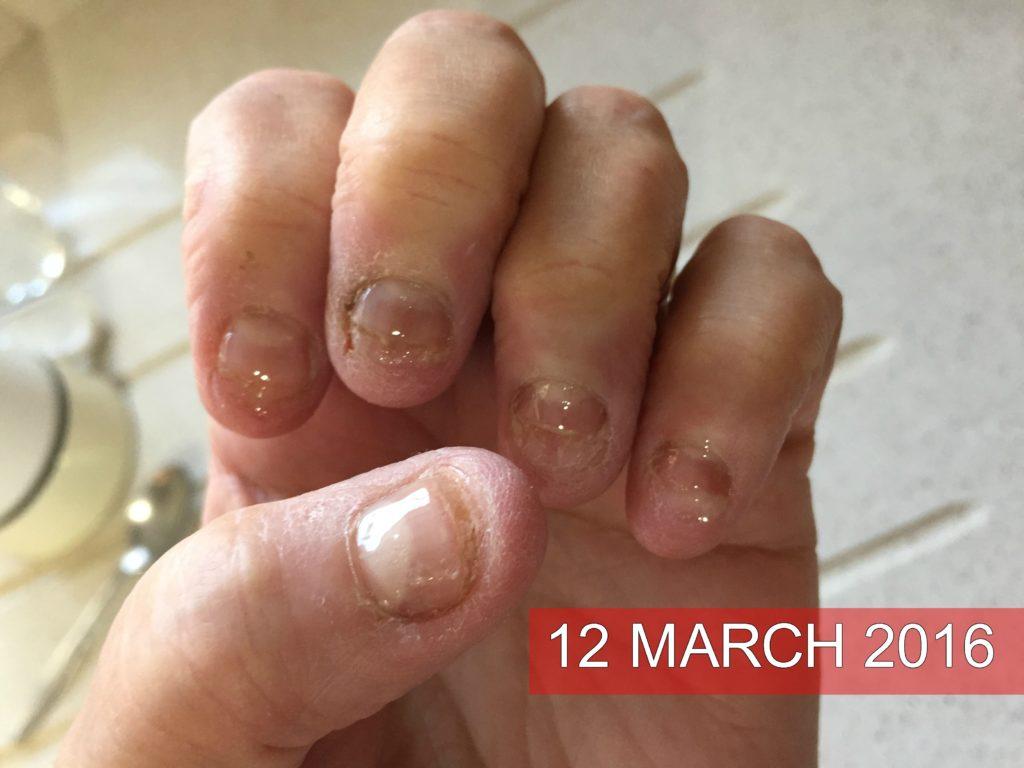 permissive nail biting screed Created by instnjctors and graduates of the  383 nail biting i 384 nail biting ii 385 nail biting ii 386 nerves of steel 387 nervousness 388 nightmares.