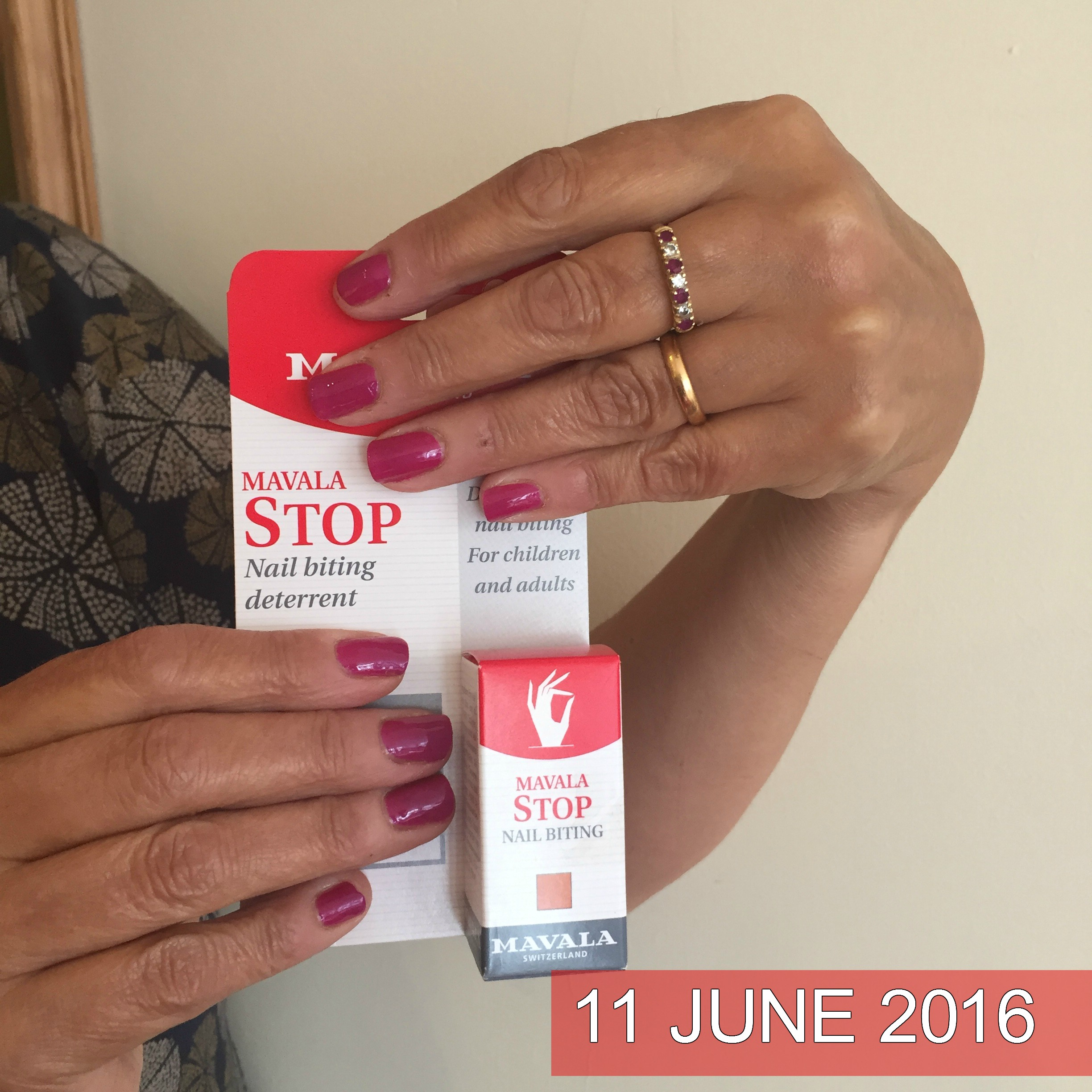 Do you bite your nails? Well, it\'s time to stop! - Go New Forest Card